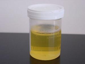 800px-Urine_sample.jpg
